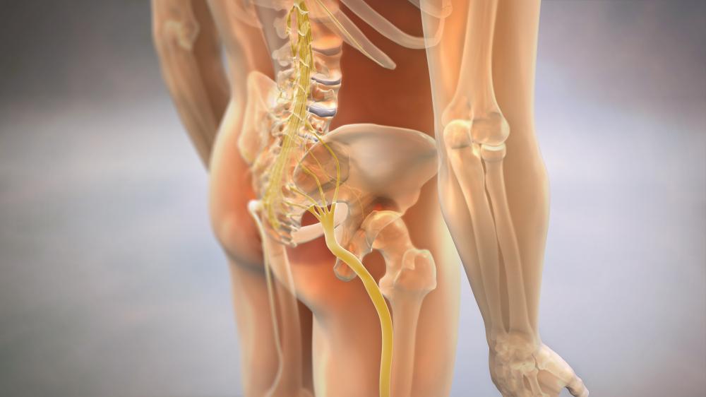 Sciatica on the body
